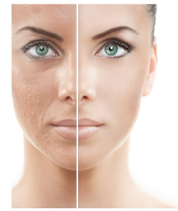 skin lightening treatments Avora Spa Coquitalm