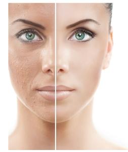 skin lightening treatments Avora Spa Coquitalm